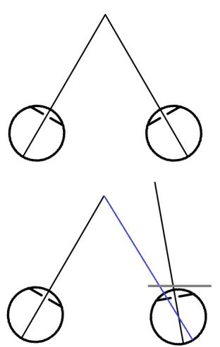 right-exophoria
